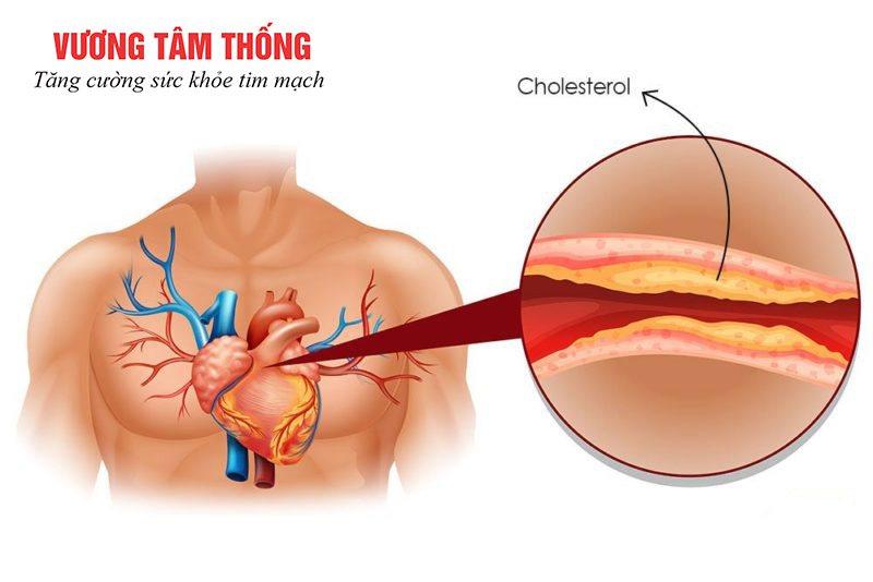 Biến chứng xơ vữa động mạch do máu nhiễm mỡ